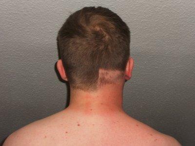 Throat hair (Chest-Beard Connection) Progress - Beard Board |Hairy Back And Neck